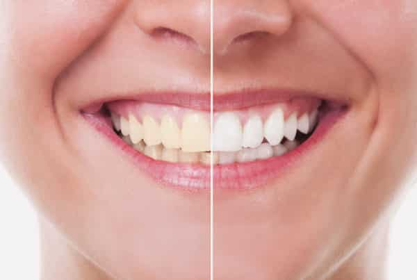 Clareamento Dental - Elevare